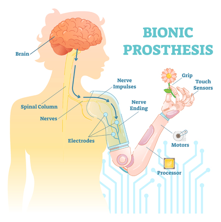 Bionic prosthesis - robotic female hand vector illustration. 向量圖像