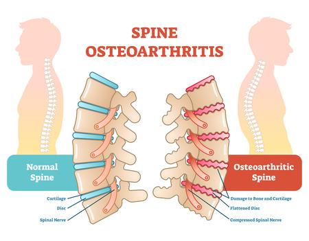 Wervelkolom artrose anatomische vector illustratie diagram, educatieve medische schema informatie.