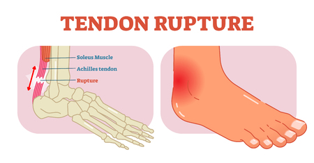 Tendon rupture anatomical example, vector illustration diagram, educational medical scheme with soleus muscle and achilles tendom.
