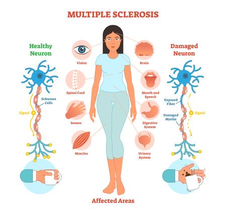 Diagrama de ilustración de vector anatómico de esclerosis múltiple, esquema médico con iconos de área afectada y bio anatomía de neurona dañada. Ilustración de vector