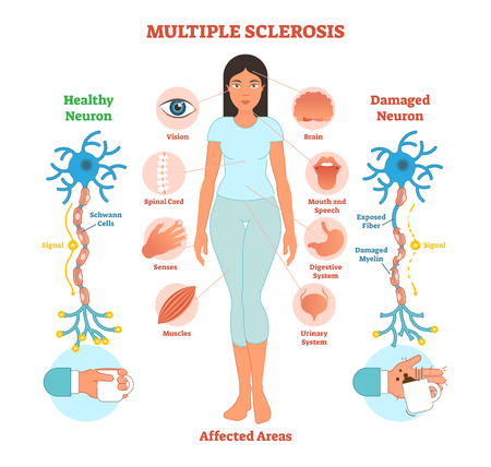 Multiple sclerosis anatomical vector illustration diagram, medical scheme with affected area icons and damaged neuron bio anatomy.