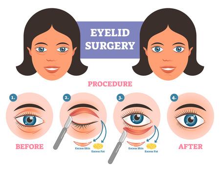 Augenlidoperationsverfahren vor nach Illuatration mit Hauptschritten. Plastische Chirurgie bei übermäßiger Haut- und Fettentfernung.