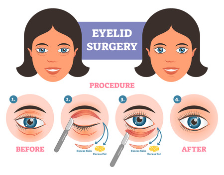 Eyelid surgery procedure before  after illuatration with main steps. Excess skin and fat removal plastic surgery. Ilustração