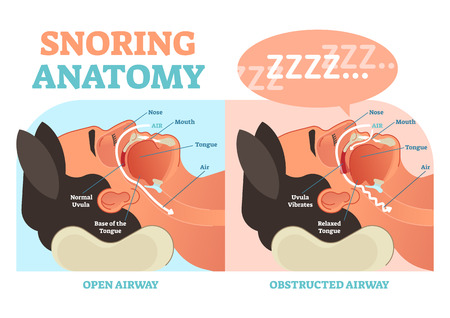 Chrapanie anatomia medyczny diagram wektorowy z nosem, ustami, językiem i przepływem powietrza.