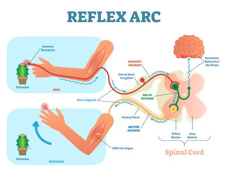 Esquema anatómico del arco reflejo espinal, ilustración vectorial, con médula espinal, vía de estímulo a la neurona sensorial, neurona de transmisión, neurona motora y tejido muscular. Diagrama educativo