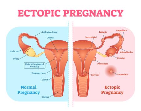 Diagrama médico del embarazo ectópico o embarazo tubárico con sistema reproductivo femenino y varias ubicaciones de fijación de embriones. Información ginecológica del embarazo.