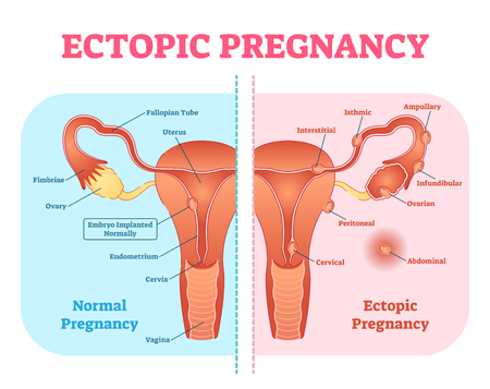 Ectopic Pregnancy or Tubal pregnancy medical diagram with female reproductive system and various embryo attachment locations. Gynecological pregnancy information.