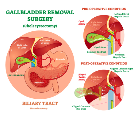Gallbladder removal surgery vector illustration Illustration