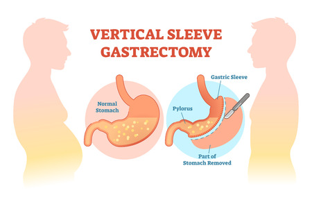 Vertical Sleeve Gastrectomy medical vector illustration diagram with stomach surgical cut. Anatomical diagram.