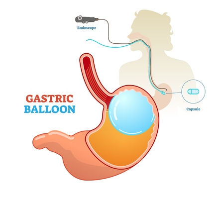 Gastric balloon medical procedure concept diagram, vector illustration. Weight loss and obesity treatment. Inflated balloon in stomach.