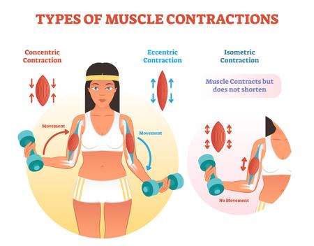 Esquema de contracciones musculares con sección transversal del brazo y ejercicio de levantamiento de pesas. Diagrama de tipos de contracción concéntrica, excéntrica e isométrica.