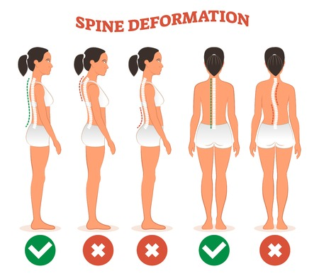 Spine deformation types and healthy spine comparison diagram poster with back bone curvatures. Female profile and back view. Chiropractic information.