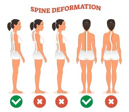 Wirbelsäulenverformungstypen und gesundes Wirbelsäulenvergleichsdiagrammplakat mit Wirbelsäulenkrümmungen. Weibliches Profil und Rückansicht. Chiropraktik Informationen.