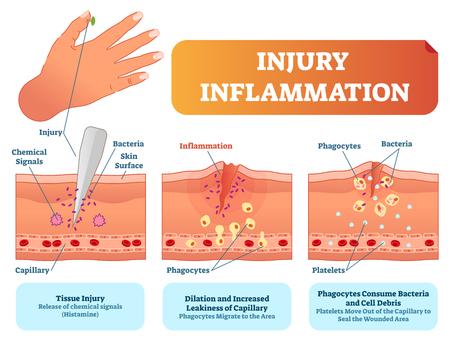 Biologischer Reaktionsvektor-Illustrationsentwurf des menschlichen Körpers der Verletzungsentzündung. Hautoberflächenverletzung Querschnitt Poster mit Kapillaren, Phagozyten und Thrombozyten gegen Bakterien und heilende Wunden. Vektorgrafik