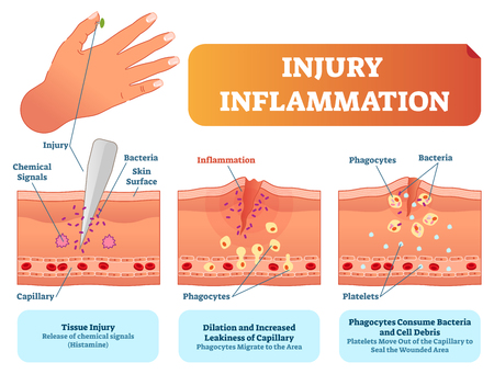 Injury inflammation biological human body response vector illustration scheme. Skin surface injury cross section poster with capillary, phagocytes and platelets fighting bacteria and healing wound. 免版税图像 - 99797127