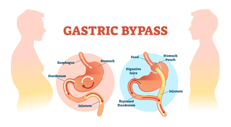 Gastric bypass medical surgery procedure vector illustration with esophagus, stomach, duodenum and jejunum flow. Anatomical diagram with normal stomach and bypassed. Ilustração