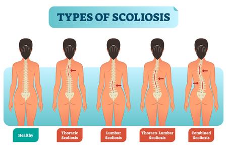 Tipos de diagrama de ilustración de vector anatómico médico de escoliosis con curvaturas de la columna en comparación con la columna vertebral sana. Mujer de vista trasera con etiquetas.