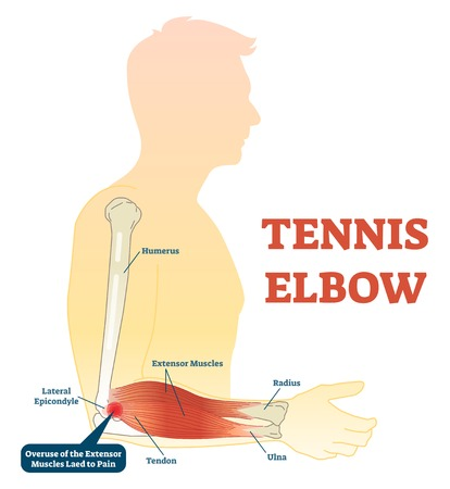 Tennis elbow medical fitness anatomy vector illustration diagram with arm bones, joint and muscles. Overuse of extensor muscles leading to pain. Vettoriali