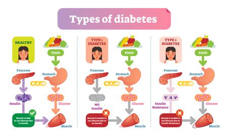 Tipos de esquema de ilustración de vector médico simple de diabetes. Diagrama de información sanitaria con diabetes tipo 1 y tipo 2. Ilustración de vector