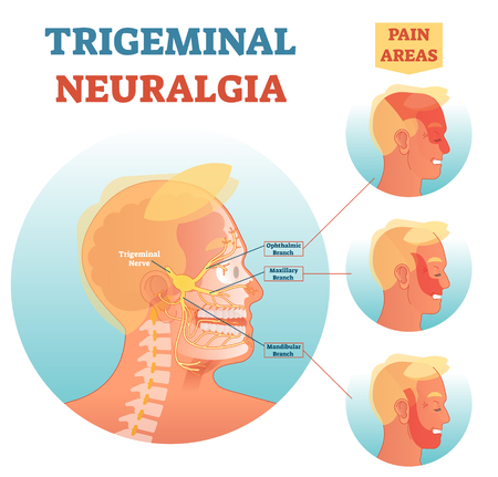 Trigeminal neuralgia anatomy vector illustration diagram with facial neural network and pain areas