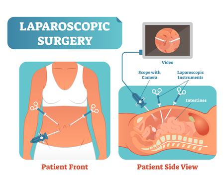 Proceso de procedimiento quirúrgico de atención médica de la cirugía laparoscópica, diagrama de ilustración de vector de sección transversal anatómica. Instrumentos de laparoscopia con cámara y pantalla. Ilustración de vector