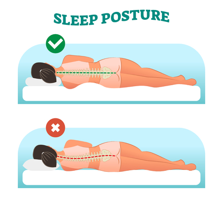 Correct and healthy sleeping posture for your neck and spine, vector illustration with sleeping female from back view. Right and wrong example. Illustration