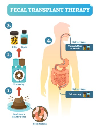 Fecal transplant therapy, procedure steps diagram, vector illustration.