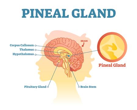 Diagrama de ilustración de vector de sección transversal anatómica de la glándula pineal con cerebros humanos. Cartel de información médica.