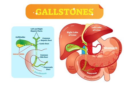 Gallstones anatomical cross section vector illustration diagram with abdominal cavity and gallbladder, bile ducts and duodenum. Labeled medical information poster. 일러스트