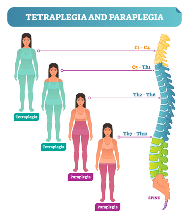Tetraplegia and paraplegia spinal neural disorder medical vector illustration diagram with female patient and back bone cross section scheme. Movement disability injury condition.