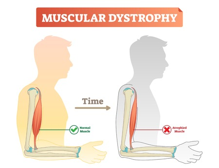 Muscular dystrophy vector illustration. Compared normal and healthy muscle versus atrophied and weak. Medical scheme with explanation how time affects bicep - normal strong muscle and degeneration. Archivio Fotografico - 105787914