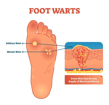 Vector illustration of foot warts. Medical scheme with both types - solitary and mosaic warts. Close-up cross section with detailed wart and its own supply of blood and nerves. Stok Fotoğraf - 105787920