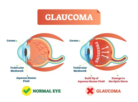 Glaucoma illness vector illustration. Cross section close-up comparement with normal and damaged eye. Scheme with cornea, trabecular meshwork, aqueous humor fluid, pressure and optic nerve damage. Illusztráció