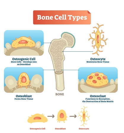 Vector illustration of human bone cell types. Scheme of osteogenic cell, osteoblast and osteocyte. Medical diagram visualization of stem cells, bone tissue, resorption and destruction of bone matrix.