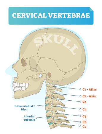 Vector Illustration Of Cervical Vertebrae Medical Scheme With