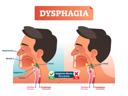 Vector illustration about dysphagia. Human compered in scheme. Closeup head with nasal cavity, mouth, tongue, trachea to lungs and esophagus to stomach. Explained how epiglottis blocks the larynx.