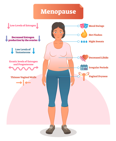 Menopause labeled vector illustration. Medical scheme and diagram with list of estrogen, ovaries, testosterone and progesterone symptoms. Anatomical explanation set of mood swings, libido and periods. Foto de archivo - 104955413
