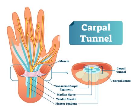 Esquema de ilustración de vector de túnel carpiano. Primer plano de diagrama etiquetado médico con músculo aislado, ligamento carpiano transversal, nervio mediano, vaina del tendón, tendones flexores y huesos. Trabajo y enfermedad laboral