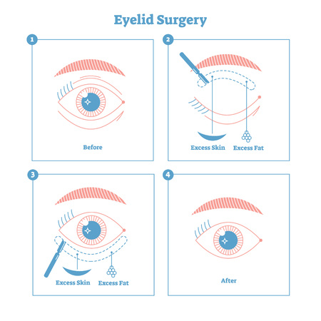 Eyelid surgery procedure scheme illustration with main steps. Excess skin and fat removal plastic surgery. Women fashion and beauty informative material with beautiful line style graphic design.