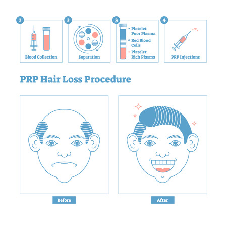 PRP Procedure, men's beauty and health cosmetology scheme. Male baldness issues and solution. Line style clean design poster with labels and steps. Informative hair loss medical procedure system.