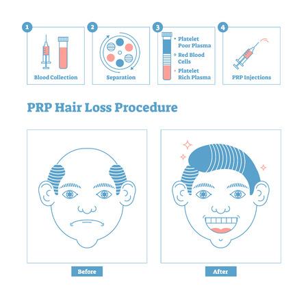 PRP-Verfahren, Schönheits- und Gesundheitskosmetik für Männer. Probleme mit männlicher Kahlheit und Lösung. Sauberes Design-Poster im Linienstil mit Etiketten und Schritten. Informatives medizinisches Verfahrenssystem gegen Haarausfall.