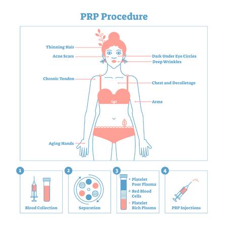 Schema grafico di illustrazione vettoriale di procedura PRP, schema di procedura di cosmetologia. Bellezza e cura della pelle delle donne. Poster dal design pulito in stile linea con etichette. Manifesto informativo.