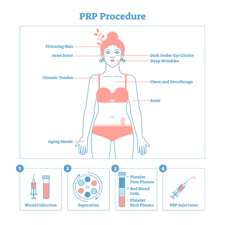 PRP Procedure vector illustration graphic diagram, cosmetology procedure scheme. Women beauty and skincare. Line style clean design poster with labels. Informative poster.