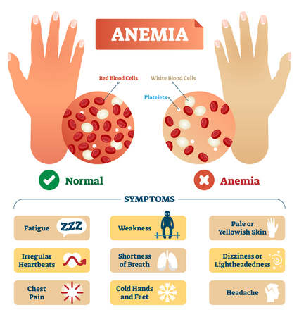 Anemia vector illustration. Medical labeled scheme with problematic red and white blood cells, and platelets. Microscopic diagram with disease diagnostic symptoms. Ilustração