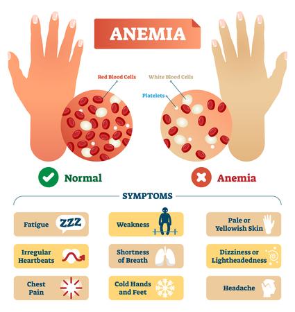 Illustration vectorielle de l'anémie. Schéma étiqueté médical avec des globules rouges et blancs problématiques et des plaquettes. Diagramme microscopique avec symptômes diagnostiques de la maladie.
