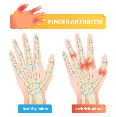 Finger arthritis vector illustration. Educational smooth example of chronic skeleton and hand pain, inflammation, stiffness and autoimmune disorder. Patient diagnosis.