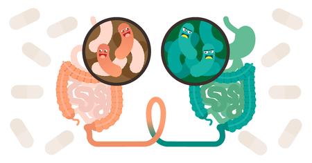 Fäkales Mikrobiota-Transplantat (FMT) oder Stuhltransplantationsverfahren-Konzeptvektorillustrationsplakat mit zwei Bakterienumgebungen und verbundenem Darmtrakt. Gesundheitsmethode der menschlichen Mikroflora.