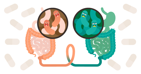 Greffe de microbiote fécal (FMT) ou affiche d'illustration vectorielle de concept de procédure de transplantation de selles avec deux environnements bactériens et tractus intestinal joint. Méthode de soins de santé de la micro-flore humaine.