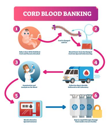 Ilustración de vector de infografía de banca de sangre de cordón. Esquema con el bebé adherido al cordón y la placenta, extracción de sangre en una bolsa de recolección, parto, examen y almacenamiento. Ilustración de vector