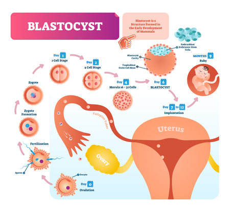 Blastocyst vector illustration infographic diagram. Biological embryo early stage labeled scheme with ovulation, fertilization, zygote formation, cells and implantation. Vektoros illusztráció